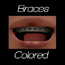 Mod The Sims Braces